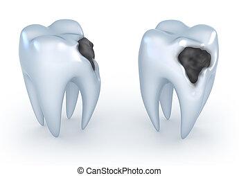 cariado, dentes, image., 3d