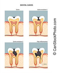 Caries - Development of dental caries. Vector illustration