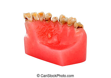 caries - model of human jaw affected tooth decay