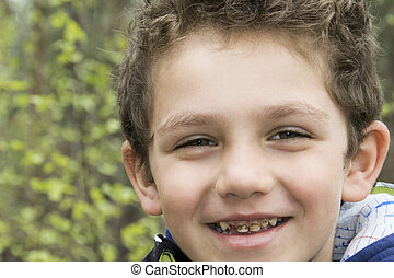 Smiling boy and his broken teeth with caries curves