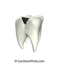 Caries Tooth 3D - 3d illustration looks caries tooth on the...