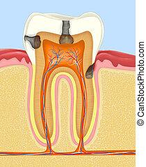 carious human tooth - Carious human tooth cross-section