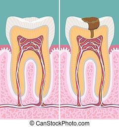 carious, menneske, tand, kors sektion