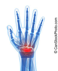 3d rendered illustration of the carpal tunnel syndrome
