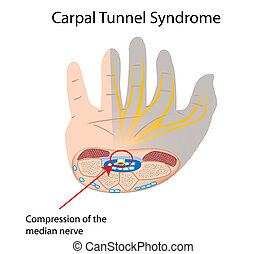 Carpal tunnel syndrome, eps10 - Compression of median nerve