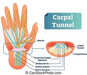 Carpal tunnel vector illustration scheme. Medical labeled...