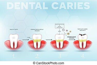 cartel, diente, formación, decaimiento