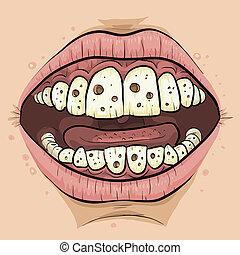 Cartoon Cavities - A close up of a cartoon mouth with teeth...