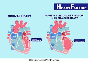 heart failure concept - cartoon heart failure concept on the...