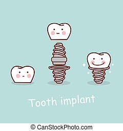 cartoon tooth dental implantation concept