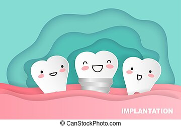 cartoon tooth implant