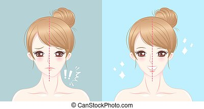 cartoon woman asymmetry chin - surgery woman asymmetry chin ...