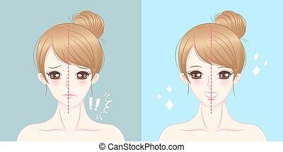 cartoon woman asymmetry chin - surgery woman asymmetry chin...