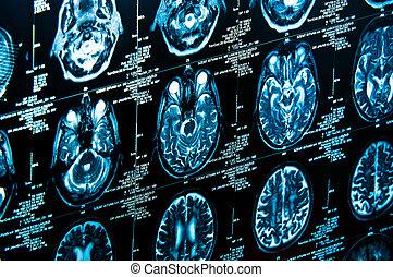 (cat, scan), varredura, axial, computador, closeup, tomografia