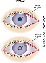 cataract - medical illustration of the effects of cataract