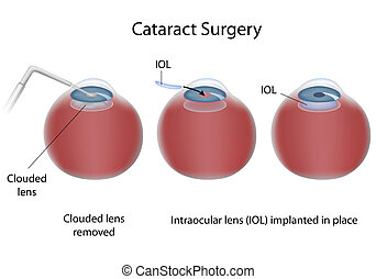 Cataract surgery, eps10 - Procedure for treatment of...