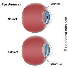 catarata, olho, doença, eps8
