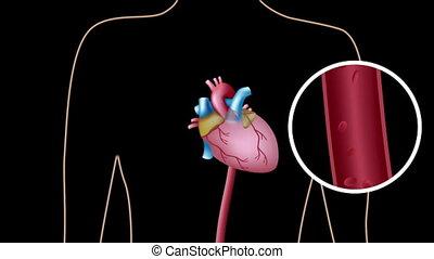 catheterization cardiaque