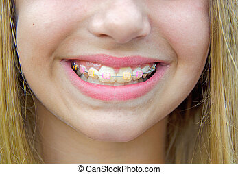 Caucasian girl with braces