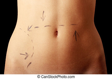 Caucasian woman\'s abdomen marked with lines
