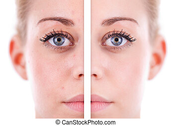 Caucasian woman's face skin, beauty concept before and after contrast, power of retouch