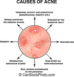 Causes of acne. Pustules, papules, comedones, blackheads,...