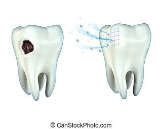 cavidade, dentes