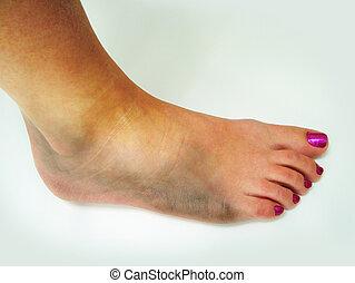 caviglia, ammaccato