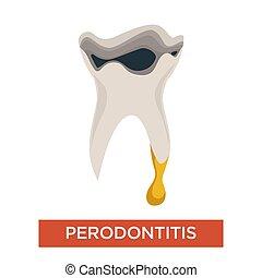 cavité, malade, maladie, dent, bouche, art dentaire, periodontitis