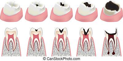 Cavity - Advance of a cavity