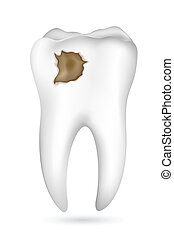 Cavity in Tooth - illustration of cavity in tooth on white...