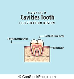 Cavitys tooth cross-section structure inside tooth diagram and chart illustration vector on blue background. Dental concept.