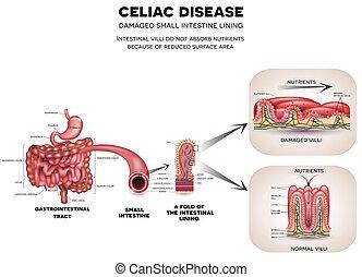 celiac, 疾病