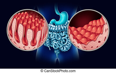Celiac Coeliac Disease - Celiac or coeliac disease as an...