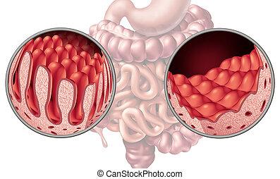 Celiac Coeliac Intestine Disease - Celiac or coeliac...