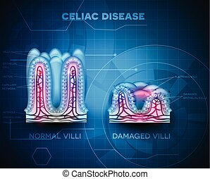 Celiac disease affected small intestine villi. Healthy villi...