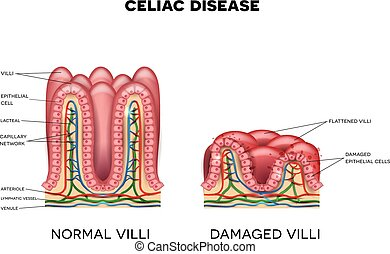 Celiac disease affected small intestine villi on a white...