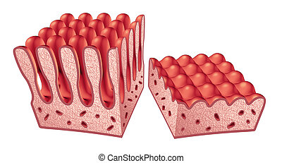 Celiac Disease Anatomy - Celiac or coeliac disease anatomy...