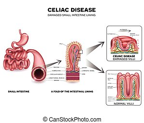 Celiac disease detailed anatomy, healthy intestinal villi...