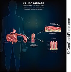 Celiac disease info poster