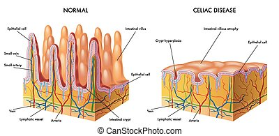 medical illustration of the modification of the intestinal mucosa in celiac subject