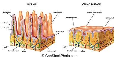 celiac disease - medical illustration of the modification of...