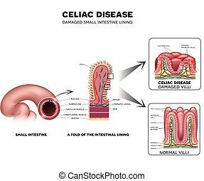 Celiac disease Small intestine lining damage. Healthy villi and damaged villi. Small intestine, a fold of the intestinal lining and villi.