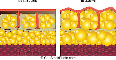 Cellulite and normal skin. Medical illustration, isolated on...