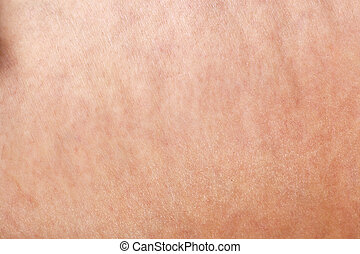 cellulite background - macro shot of cellulite on woman skin