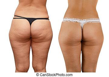 cellulite buttocks - Closeup of cellulite skin at woman...
