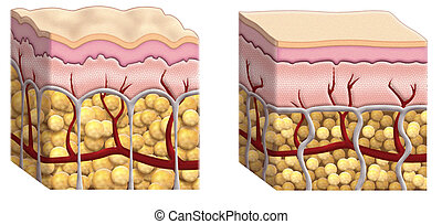 cellulite cross section - illustrated cross sections of skin...