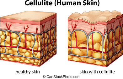 Cellulite - Illustration of skin cross section showing...