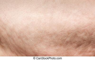 cellulite extreme macro - cellulite extreme closeup on...