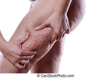 cellulite problem - Young woman holding and pinching ...